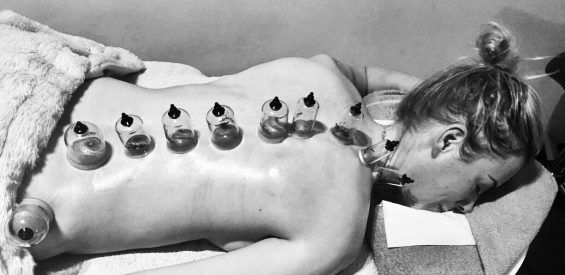 cupping, massage trend