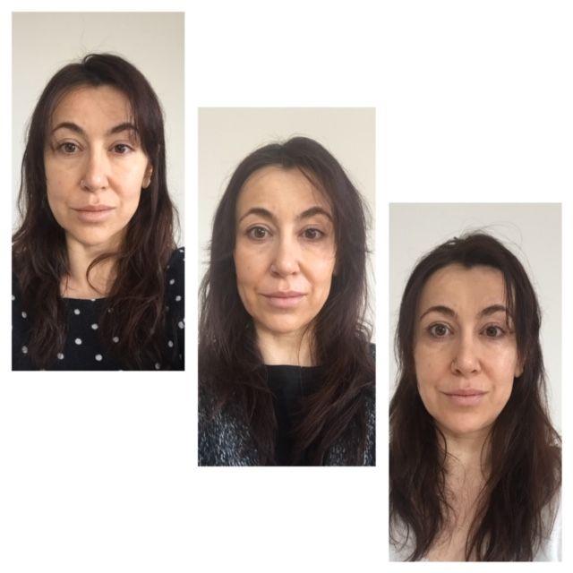face yoga, face rejuvenation, anti aging, spieren, gezicht